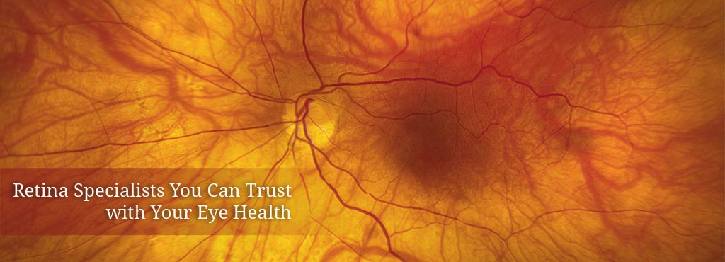Banner Image for Northern California Retina Vitreous Associates